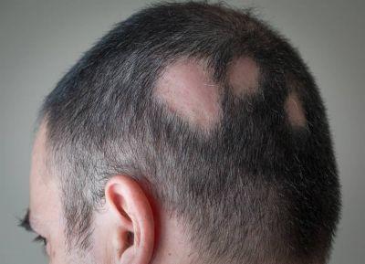 ریزش مو سکه ای و روشهای درمان آن