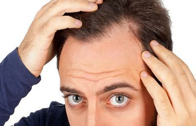 پرپشت کردن موها با استفاده از دارو های گیاهی