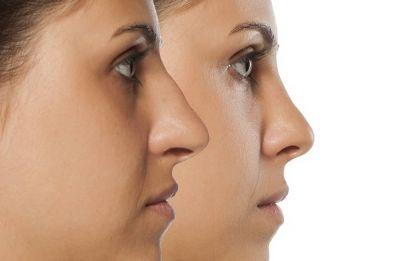 کوچک کردن بینی بدون عمل جراحی