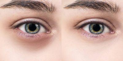 برطرف کردن پف و کبودی زیر چشم