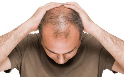 چگونه ریزش موی مردانه را کنترل کنیم؟